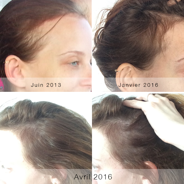 Exceptionnel Cheveux repousse - au salon de laetitia WJ66