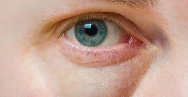 Cara Mengatasi Kantung Mata dan Lingkaran Hitam