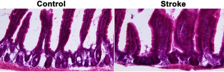 図:脳卒中後の腸絨毛