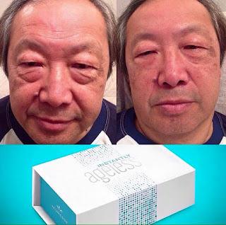 Instantly Ageless ลดถุงใต้ตา ริ้วรอย ตีนกา หลุมสิว รอยย่นบนใบหน้า ไม่ต้องศัลยกรรม สั่งซื้อโทร.089-447-5597