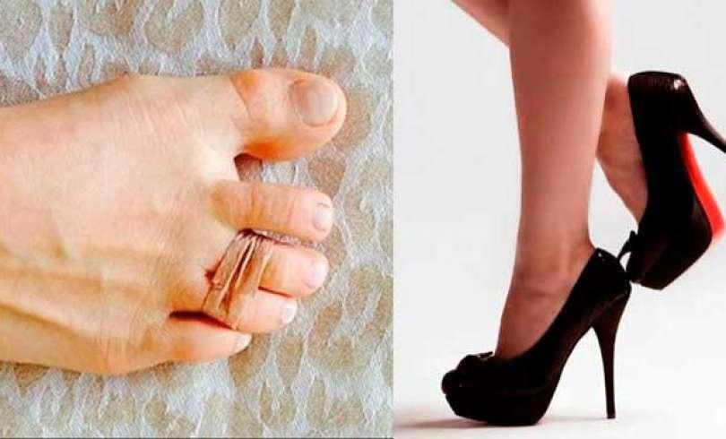 5ec079bf Adios dolor en los pies con tacos altos, este truco tan sencillo es la  solución