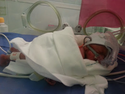 couveuse-bebe-premature-prematurite-reanimation-neaonatale