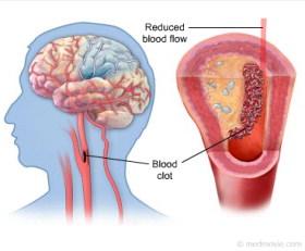 Obat Herbal Stroke, Obat Herbal Stroke AMPUH, Obat Herbal Stroke alami, Obat Herbal Stroke mujarab