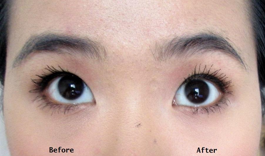 Milia Under Eye Cream – Anexa Beauty