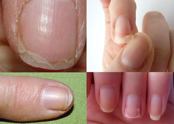 7 condições das unhas ligadas a doenças graves! Não os ignore!