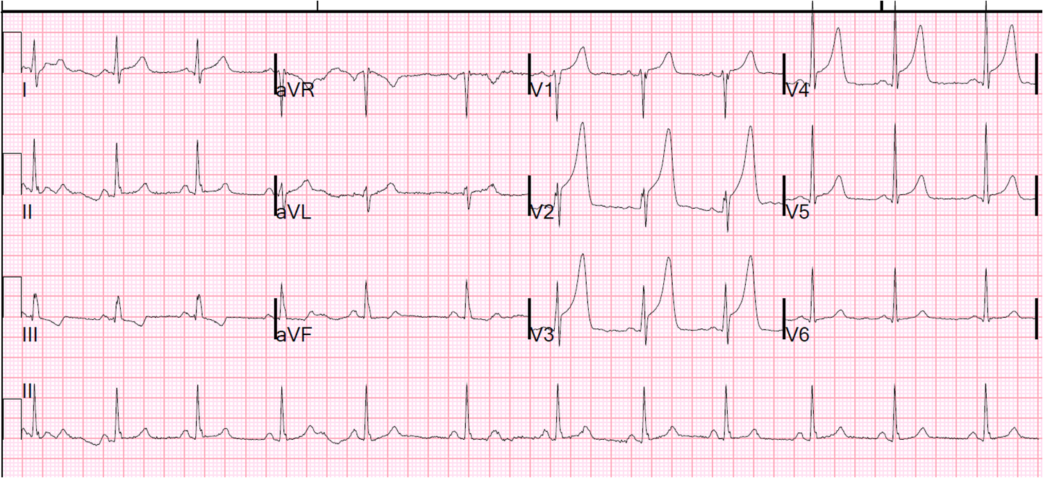 Dr. Smith's ECG Blog: Another STEMI in a Young Person with ... |Ekg Examples