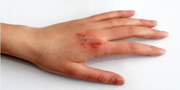 File:Apply Minor Skin Burns Common Remedies.svg