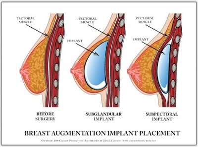 Adrienne s before and after breast surgery