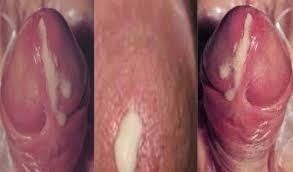 obat kencing terasa sakit keluar nanah dan darah dari lubang vagina