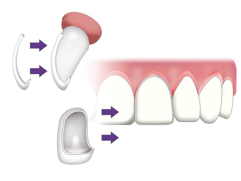 Veneer Gigi Rawatan Untuk Gigi Patah Pecah Jarang Dan Gigi Kuning