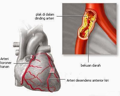 Penyempitan Pembuluh Darah Jantung
