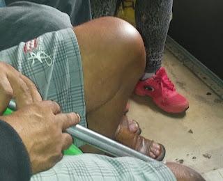 Fala Cidadão: Pacientes de Caucaia denunciam ambulância precária para levá-los à hemodiálise