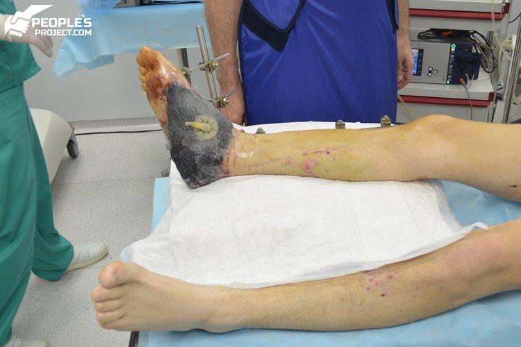 як рятують ногу солдата,що наступив на російську пластикову міну