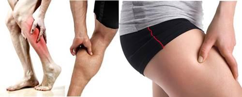 Tipos de dolores musculares que se experimentan al trotar o correr