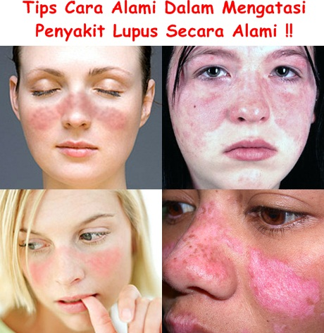 Obat Tradisional Tuntaskan Lupus