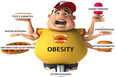 obesity-and-heart-disease