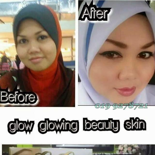 Glow Skin Care: Glow Glowing Skin Care By Dara Anggun