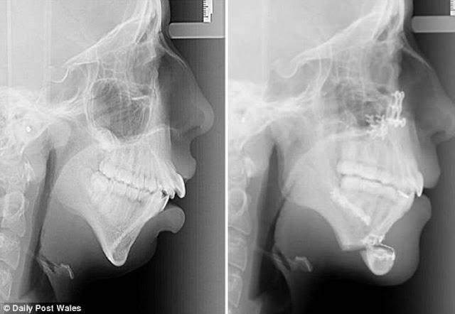 Rx mandibula y dentadura