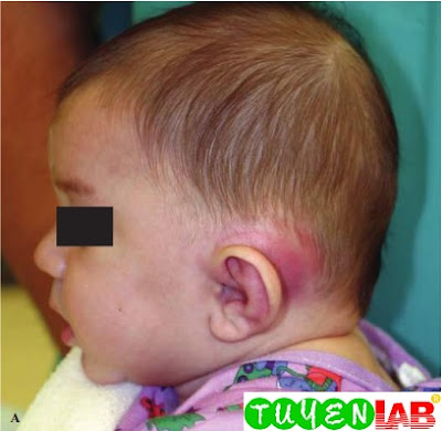 Mastoiditis in a young boy with recurrent otitis media