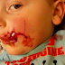 3 year old boy left with facial injuries after savage attack from dog
