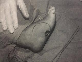 Evaluando amplitud de movimiento - sensibilidad / Espina bífida(mielodisplasia)