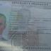 Un francés con tuberculosis tiene más de dos meses en hospital de La Romana