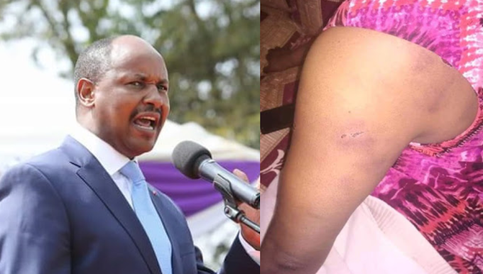 Photos: Kenyan lawmaker accused of assaulting his wife after she accused him of infidelity and infecting her with STD
