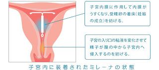 ミレーナ説明 子宮内膜症の症状・原因・治療方法