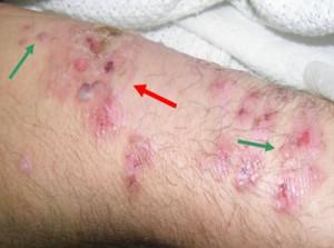 ASK DIS: Maculopapular Rash : Diagnosis