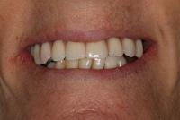 Implantes dentários em Lisboa