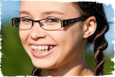 Niềng răng không nhổ răng cho trẻ em