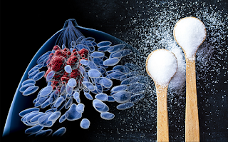Link Between Cancer to Sugar