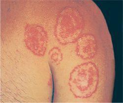 Muncul Bulatan kecil pada kulit dan lama kelamaan semakin melebar, penyakit apa ya ? Apa ada obatnya ?