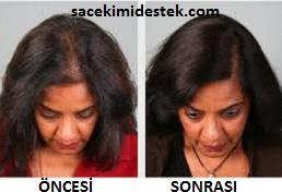 kadınlarda saç ekimi öncesi sonrası
