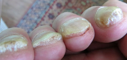 Toenail fungus cure yellow toenails along with nail discoloration ranging from white green brown and even black toenails are often triggered by toenail fungus sciox Gallery
