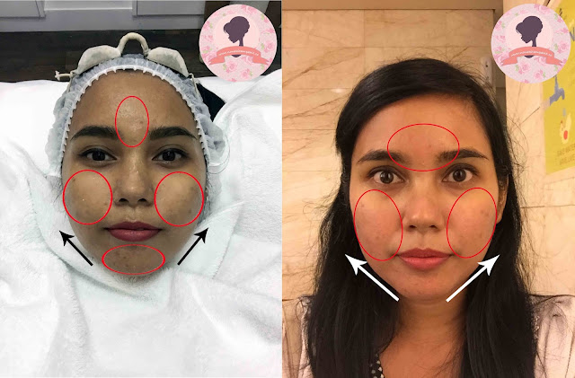 Hasil-Special-treatment-PPP-Laser-Clinic