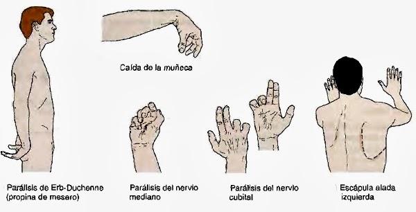 lesion de nervio mediano