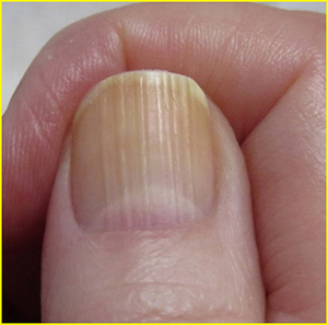 Ridges on Nails