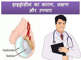 hydrocele-causes-treatment-lakshan-hindi
