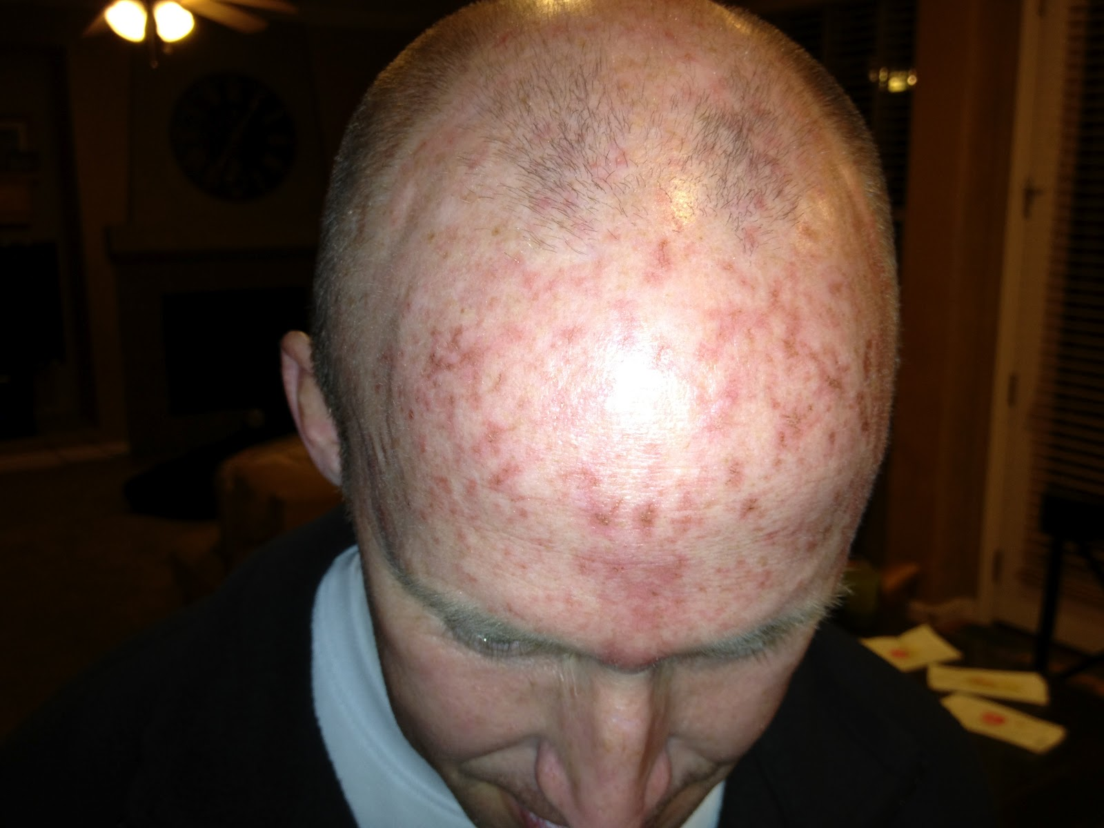 Heads Up My Battle With Actinic Keratosis The Virtual