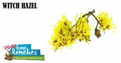 Home Remedies For Black Eye: Witch Hazel