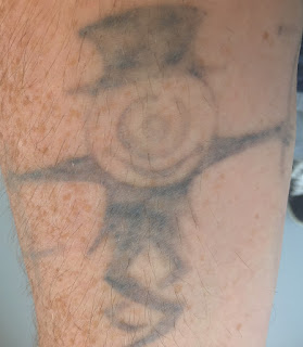 Tattoo Fading from Picosure Removal