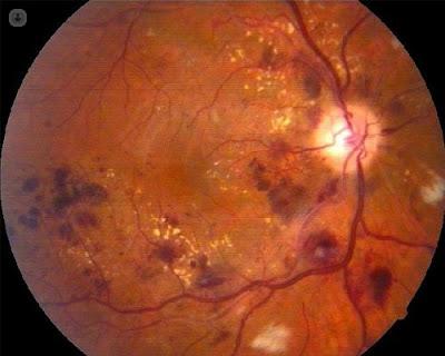 che cos'è la retinopatia diabetica