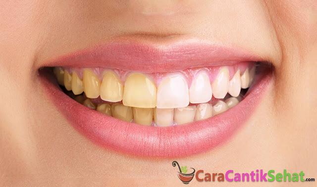 Cara memutihkan gigi kuning yang membandel
