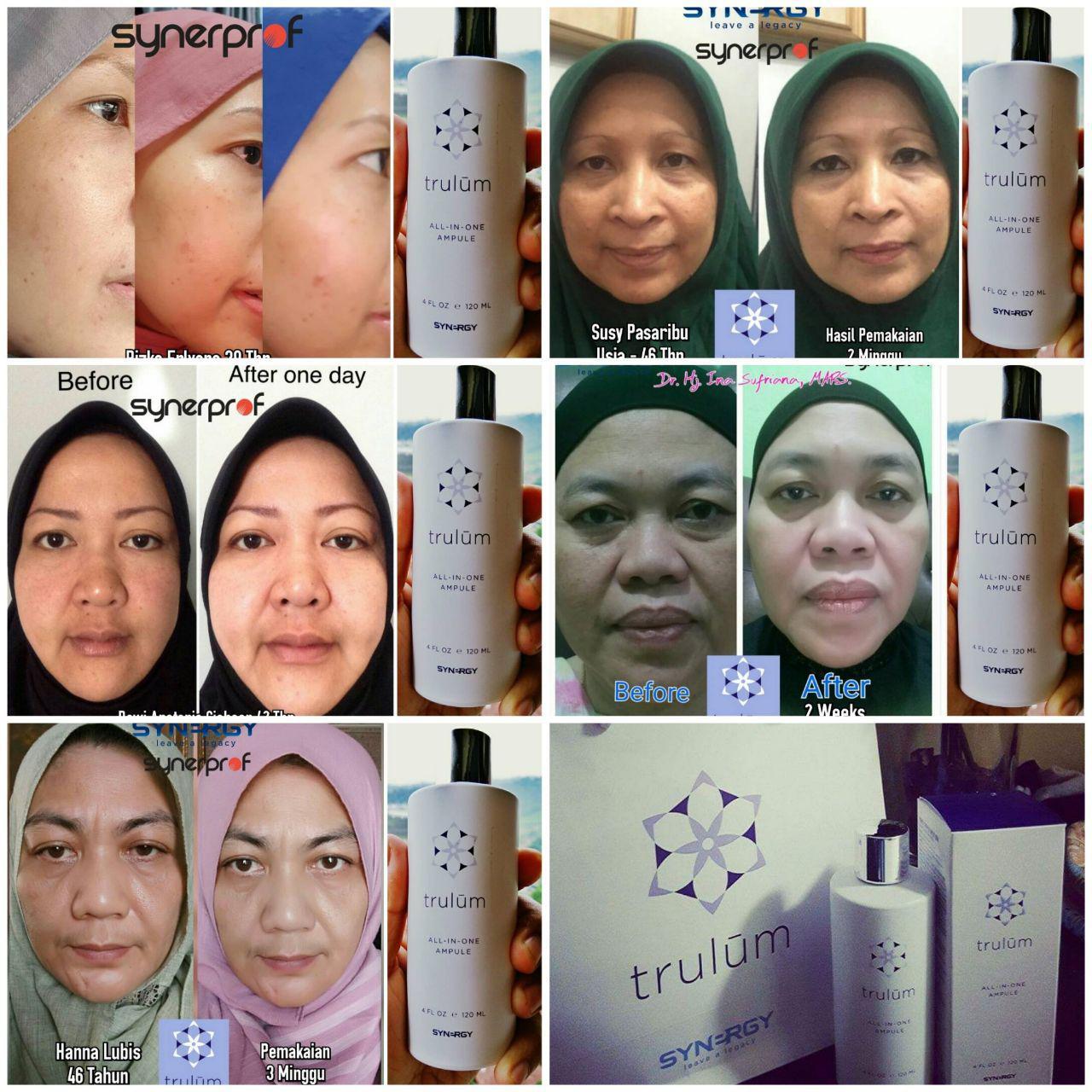 Cantik Tanpa Harus Ke Tempat Facial di Way Kanan Lampung