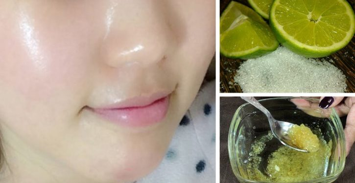 Use Lemon To Have Amazing Skin