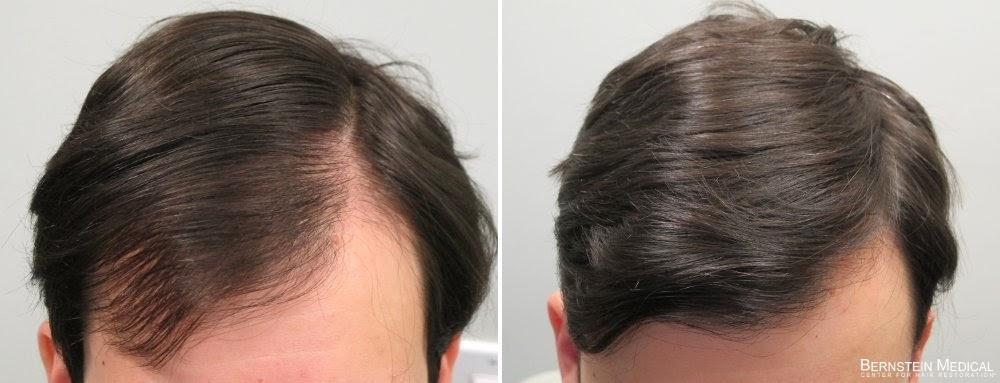 Маска для волос от перхоти в домашних условиях для роста и густоты волос был