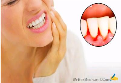 মাড়ি থেকে রক্ত পড়া প্রতিরোধে করণীয় - How to prevent blood spills from the gums
