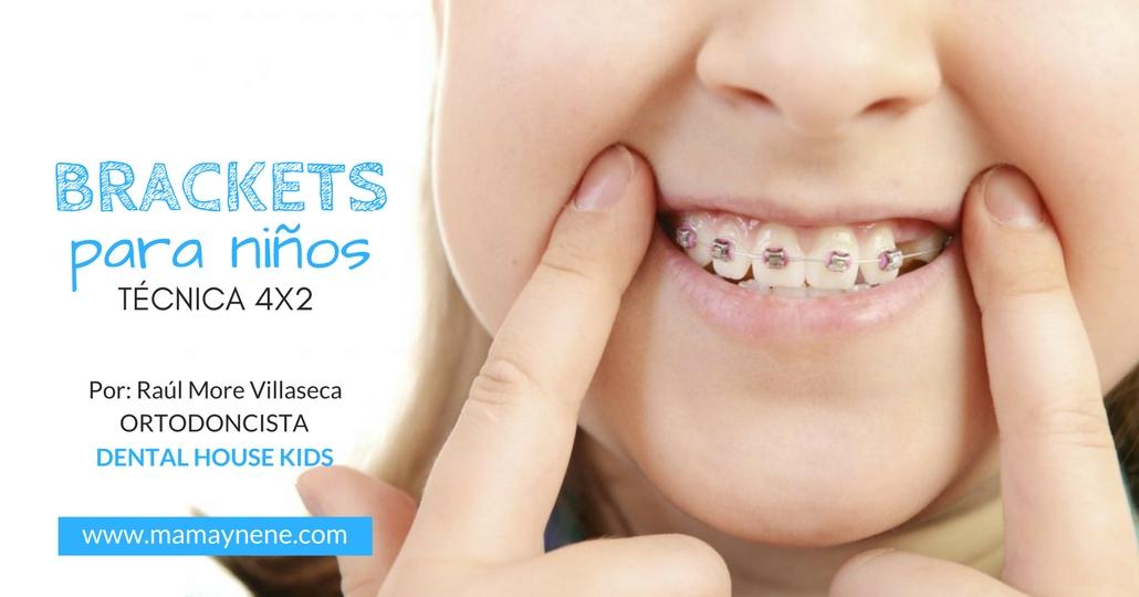 Brackets para niños: Técnica 4x2