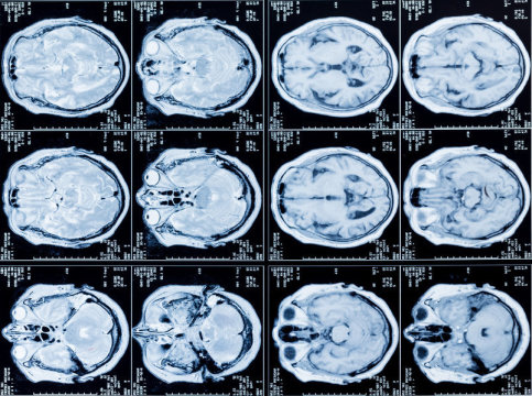 Brain Differences In Adhd >> Brain Differences In Adhd Argest Imaging Study Of Adhd To
